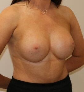 Breast enlargement after surgery left oblique view