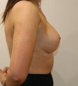 Breast enlargement after surgery right lateral view