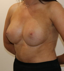 Breast enlargement after surgery right oblique view
