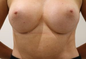 Breast enlargement scars