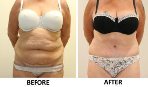 Brazilian tummy tuck before and after photos AP view