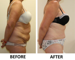Brazilian tummy tuck before and after photos right lateral view