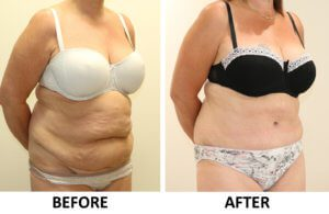 Brazilian tummy tuck before and after photos right oblique view