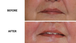 Perioral phenol peel before and after