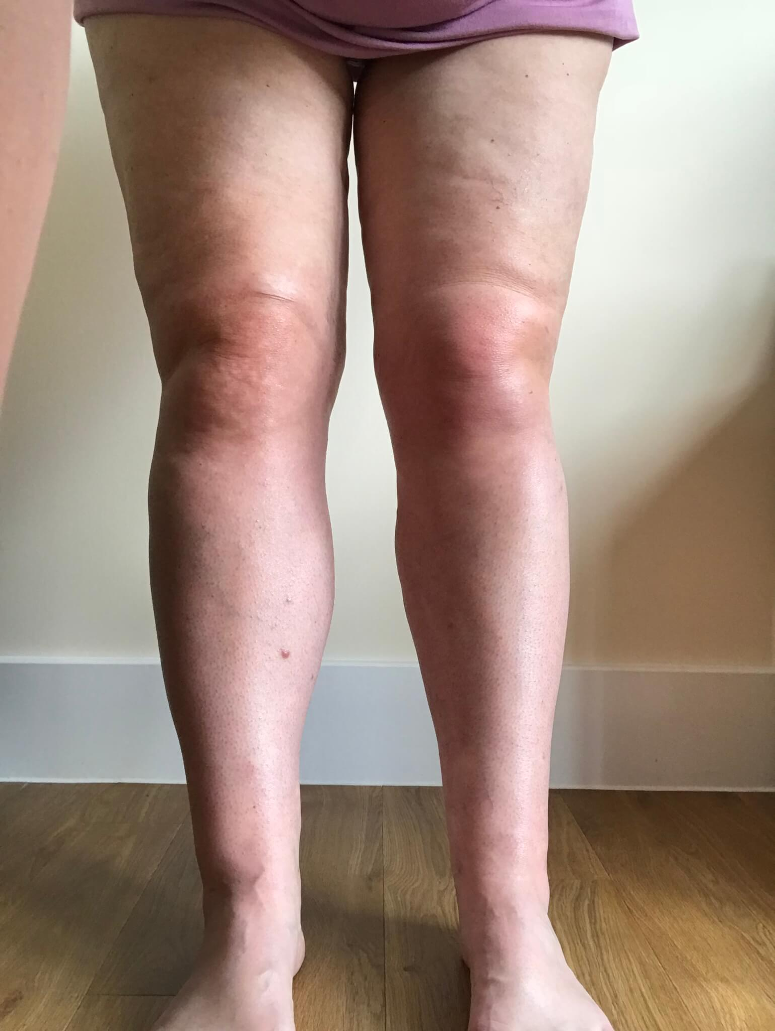 Beth's legs after surgery