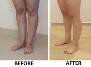 Ankle (cankle) surgery left oblique view