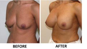 Breast enlargement left oblique view