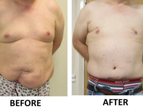 Tummy Tuck (Abdominoplasty) & Male Breast Reduction