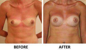 Breast enlargement AP view