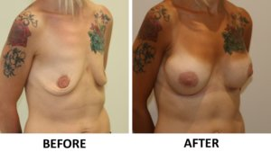 Breast enlargement right oblique view