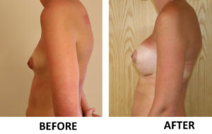 Breast enlargement left lateral view