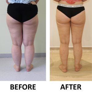 Lower limb lipoedema liposuction before and after posterior view