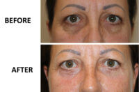Lower blepharoplasty & phenol peel AP view