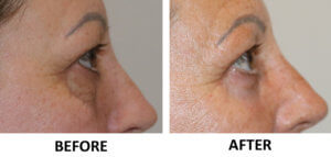 Lower blepharoplasty & phenol peel right lateral view