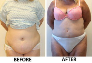 Brazilian tummy tuck before and after AP view