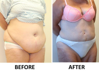 Brazilian tummy tuck before and after right oblique view