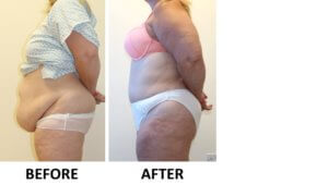 Brazilian tummy tuck before and after left lateral view