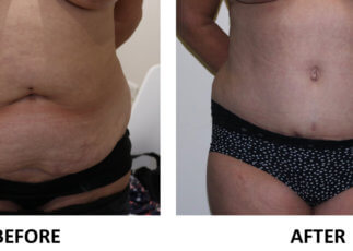 Tummy tuck before and after AP view