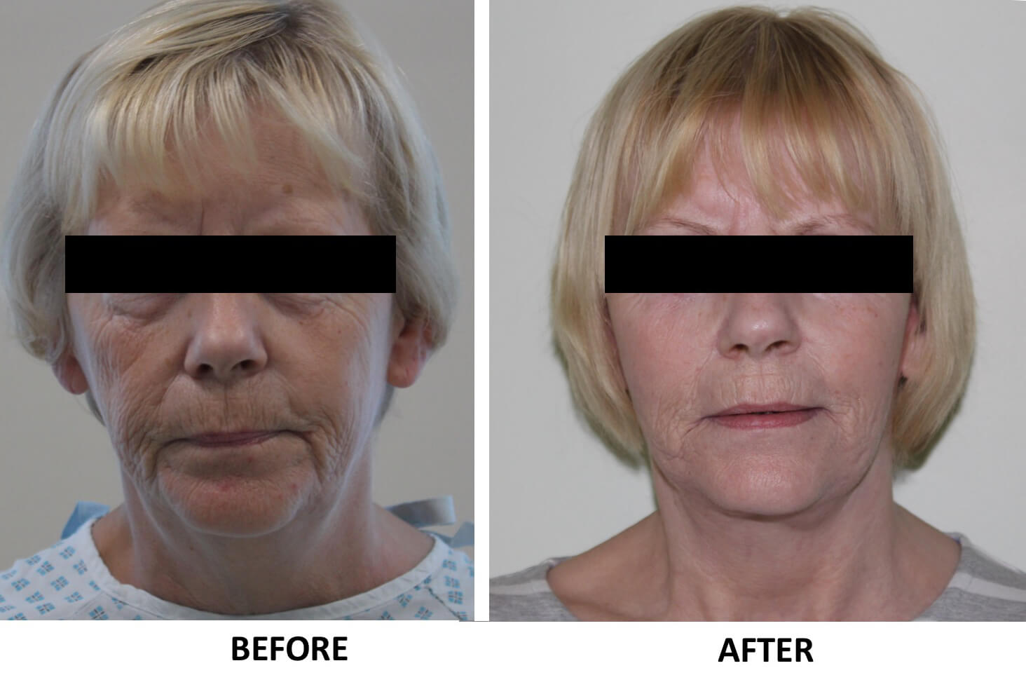 Facelift, necklift AP view