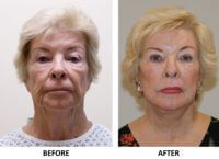 Facelift, necklift, direct brow lift, upper eyelid surgery, phenol peel AP view