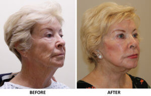 Facelift, necklift, direct brow lift, upper eyelid surgery, phenol peel right oblique view