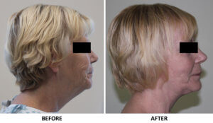 Facelift, necklift right lateral view