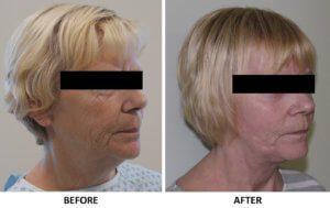 Facelift, necklift right oblique view