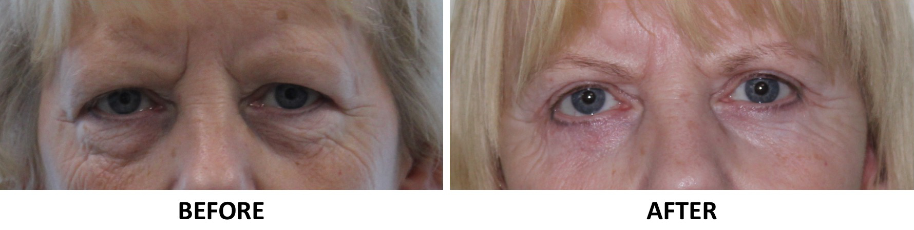 Upper eyelid surgery, lower eyelid surgery AP view