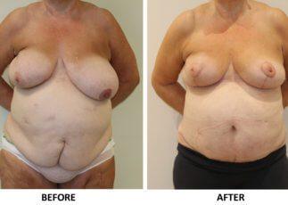 Symmetrising breast reduction and Brazilian tummy tuck AP view