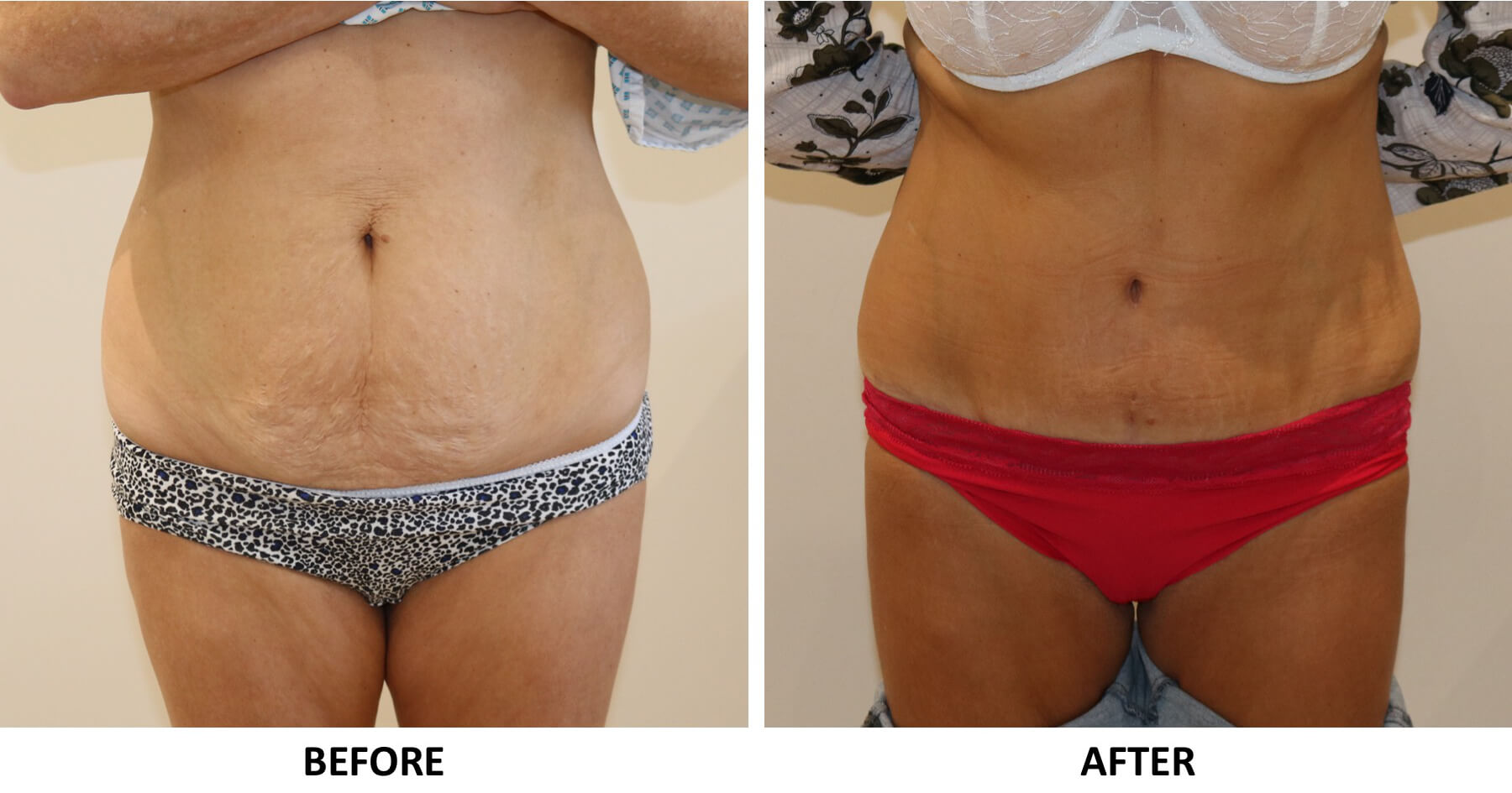 Tummy tuck (abdominoplasty) AP view