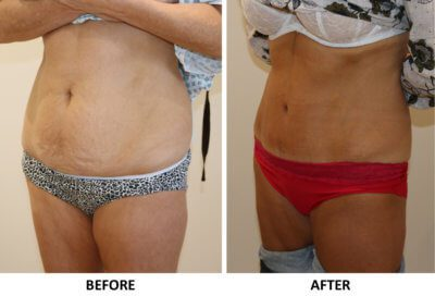Tummy tuck (abdominoplasty) left oblique view